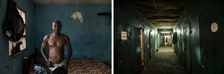 CAP PRIZE 2021 SHORTLIST: Ballo Kanteh, an ex-political prisoner shows the burns he suffered after melted plastic was dripped onto his skin by Jammeh's hit-squad, the Junglers. Kanteh spent 18-year detention at Mile 2 prison . Images ©Jason Florio/Helen Jones-Florio